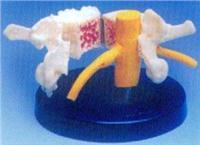 人體骨骼模型|大型脊椎骨質疏鬆、風濕痛和健康骨比較模型 GD0153F