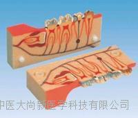 牙分解組織模型 SX-612