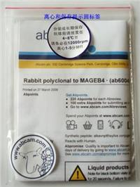 Rabbit polyclonal to NCoR2 - ChIP Grade