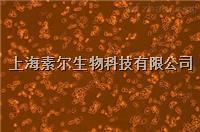 KYSE150細胞,人食管鱗癌細胞 株
